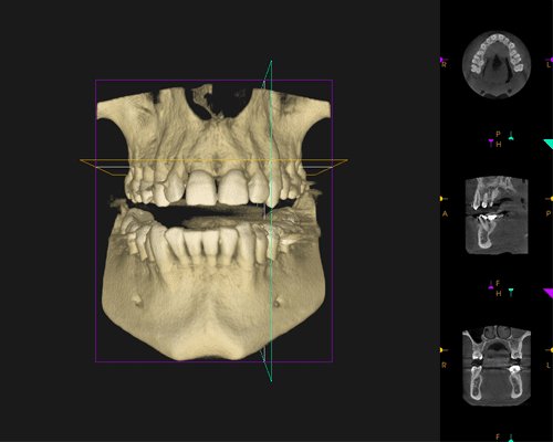 CT Scan of a jaw